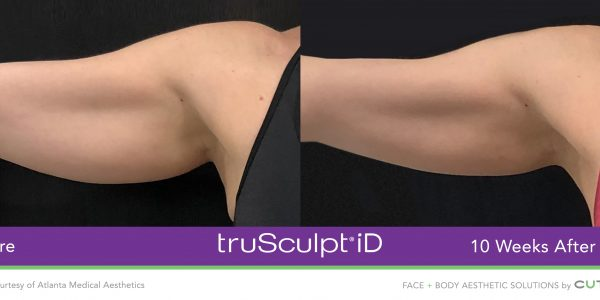 truSculpt-iD-Atlanta-Medical-Aesthetics